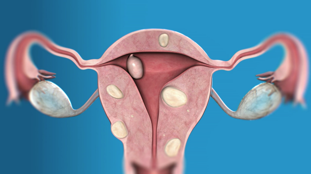 Uterus and fibroids location